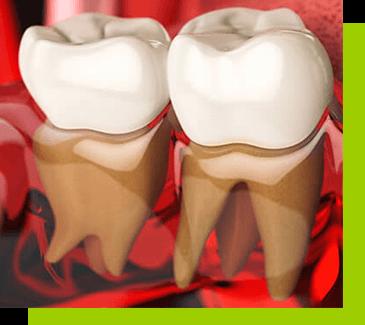 Ekstrakcja zębów łódź