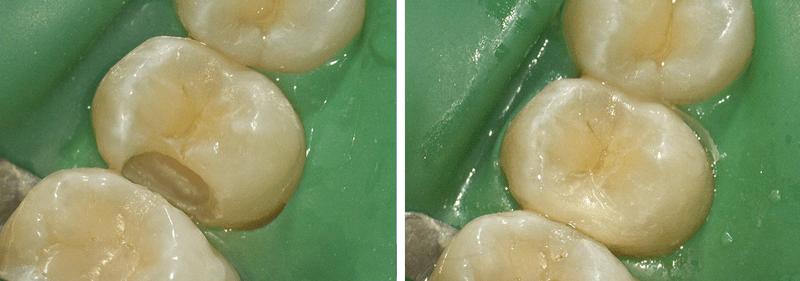 stomatologia zachowawcza łódź